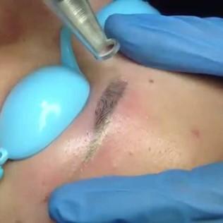 Лазерное удаления татуажа